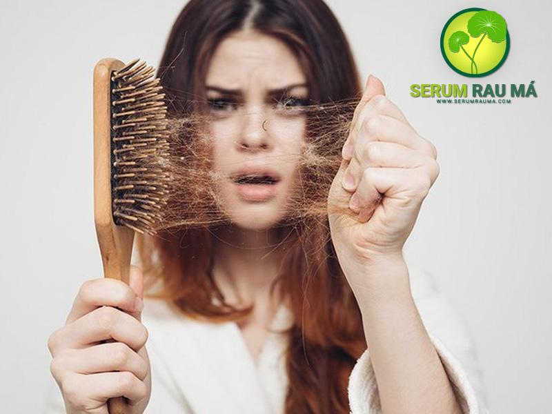 Rau má có hỗ trợ trị rụng tóc không?