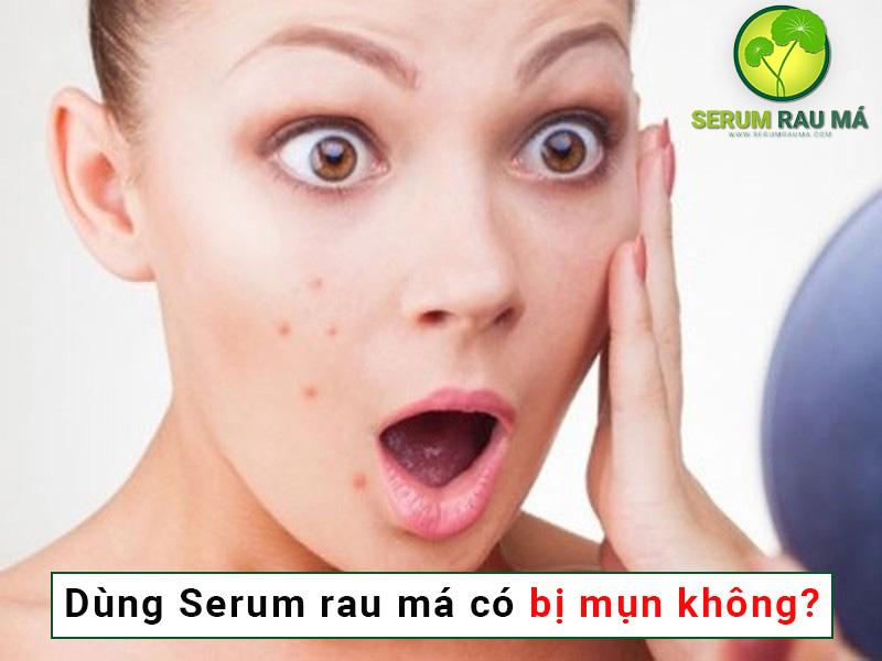 Sử dụng serum rau má có bị lên mụn không