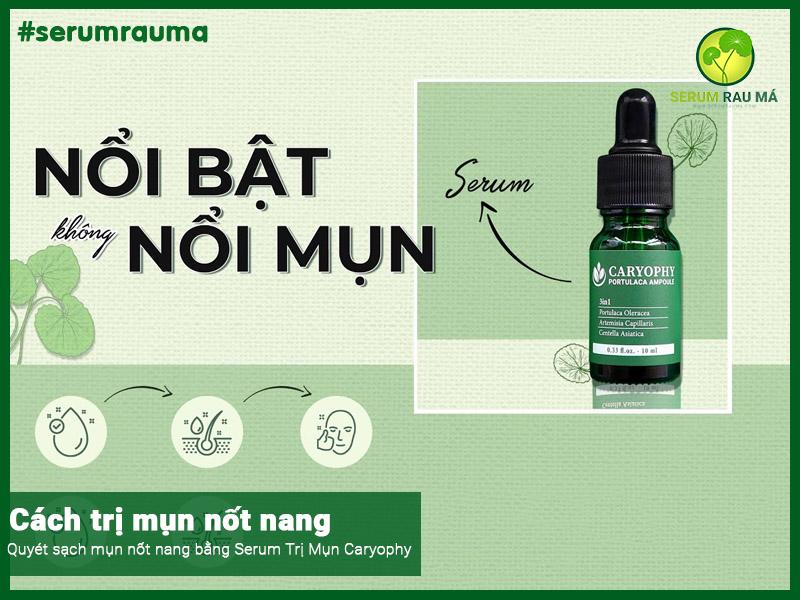 Caryophy Serum Trị Mụn Nốt Nang