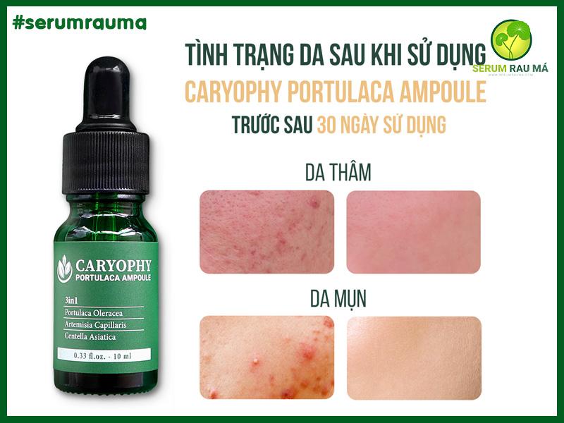 30 ngày hết mụn cùng serum rau má trị mụn Caryophy